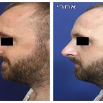 nose-sculpting-450×300