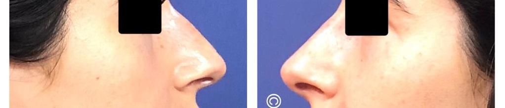 העלמת גבנון באף