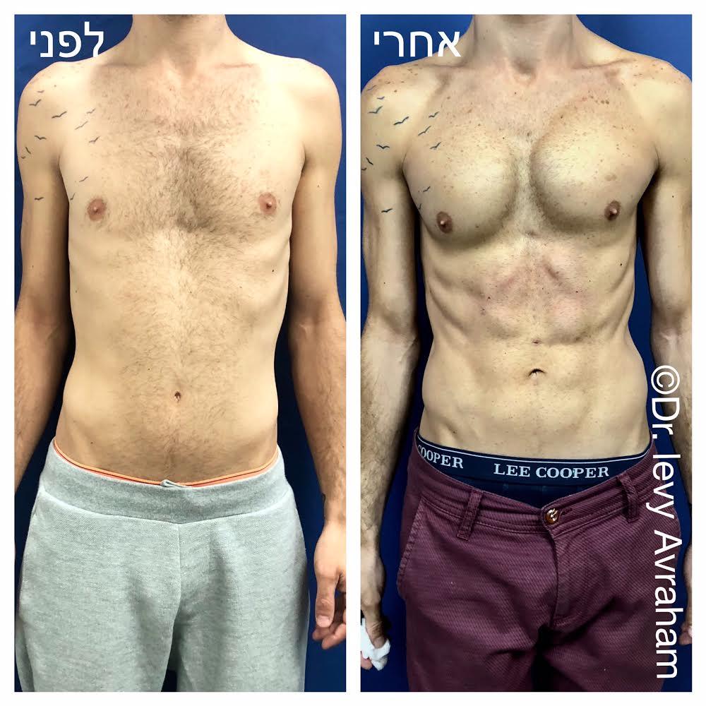 הגדלת חזה לגבר שתלי סיליקון עיצוב קוביות בשאיבת שומן בלייזר