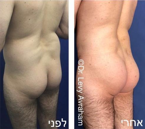 עיצוב גוף וישבן על ידי הזרקת שומן מהמותניים והבטן