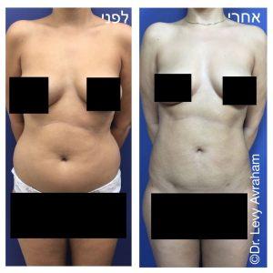 ניתוח שאיבת שומן - בטן + מותניים