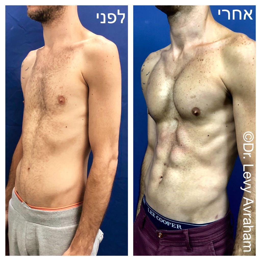 שאיבת שומן בלייזר מבית החזה, בטן, מותניים + הזרקת שומן עצמי לחזה