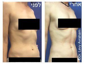 שאיבת שומן לעיצוב קו האמצע בבטן
