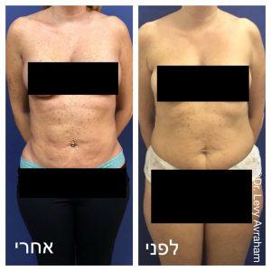 ניתוח שאיבת שומן מהבטן, מותניים