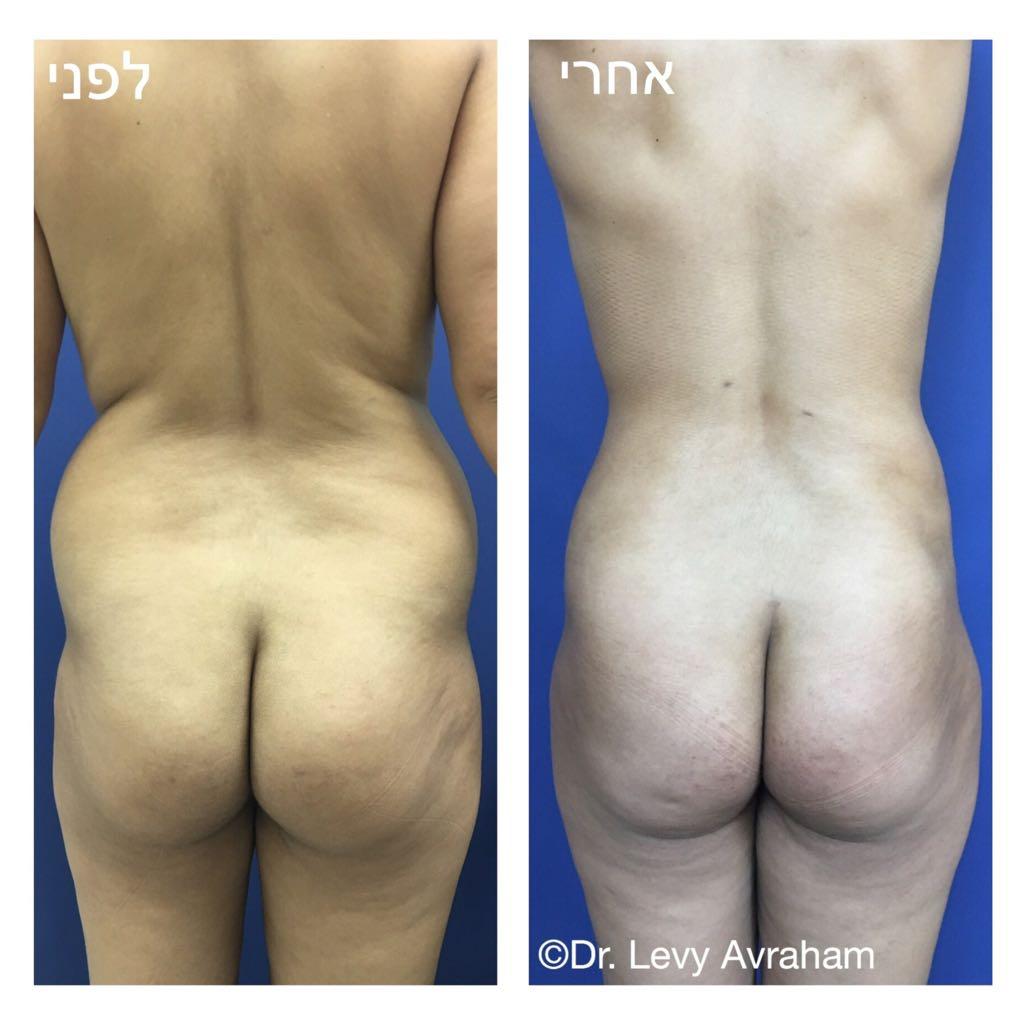 שאיבת שומן מהמותן - ניתוח