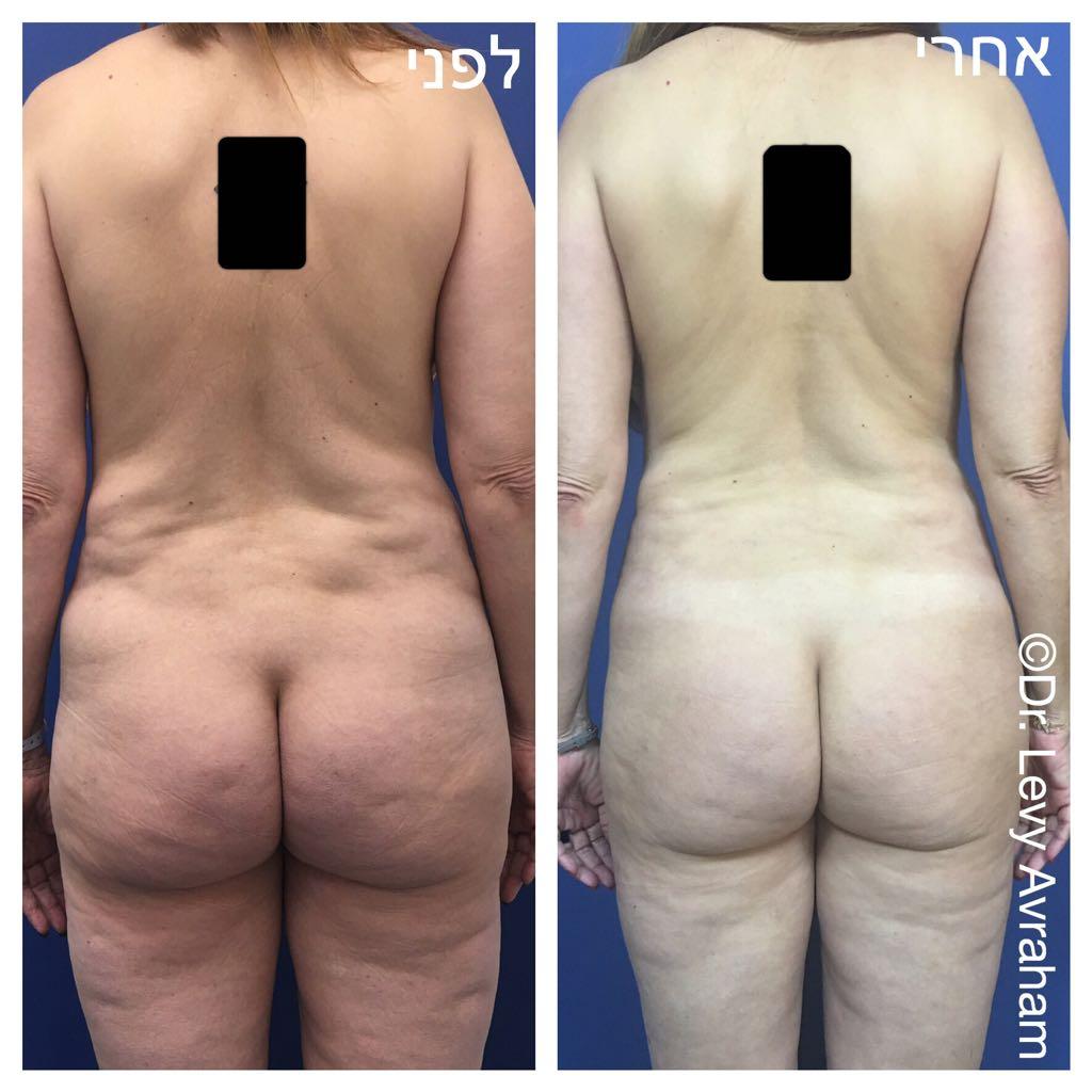 חוסר אחידות עור לאחר שאיבת שומן