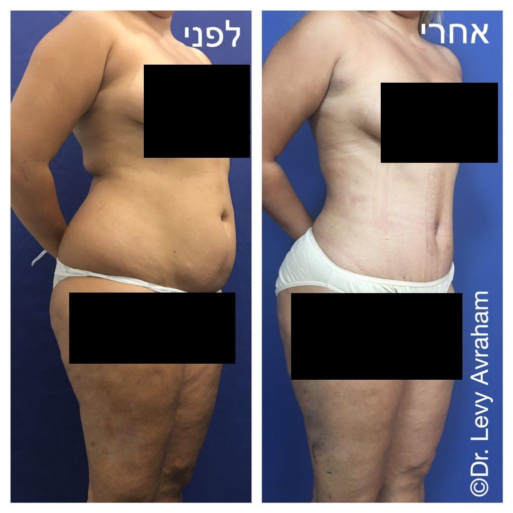 שאיבת שומן מהמותניים והגב