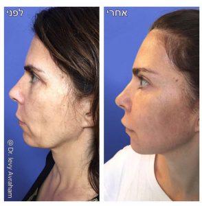 שאיבת שומן מקו הלסת עם מיצוק העור ב-RF