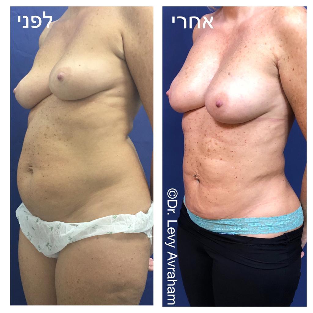הגדלת שד בהזרקת שומן