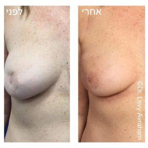הזרקת שומן עצמוני ותיקון הדפורמציה