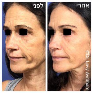 הרמת פנים באמצעות הזרקת בוטוקס וחומצה היאלורונית