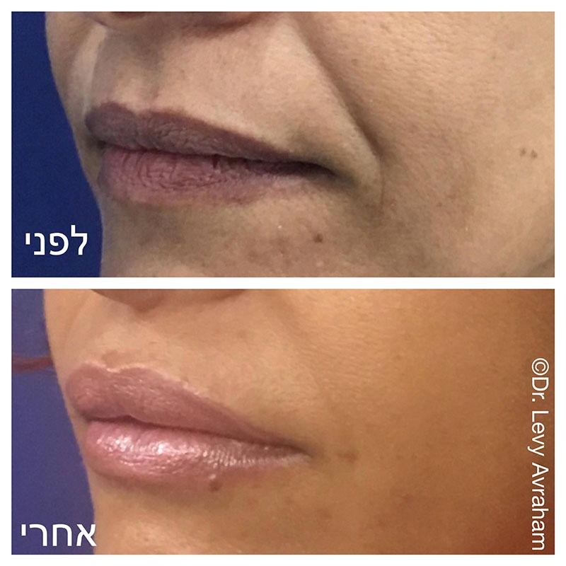 הזרקת שומן לשפתיים