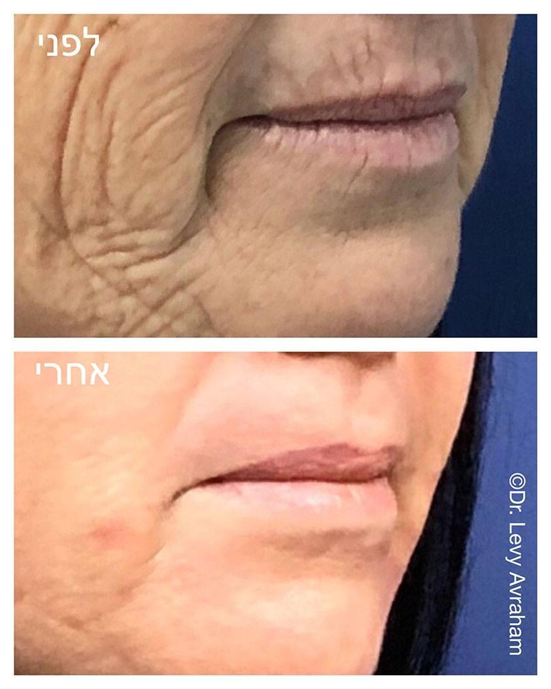 עיצוב שפתיים - שיוף לשפה העליונה