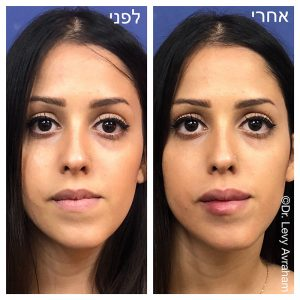 מילוי שפתיים ותיקון חוסר סימטריה