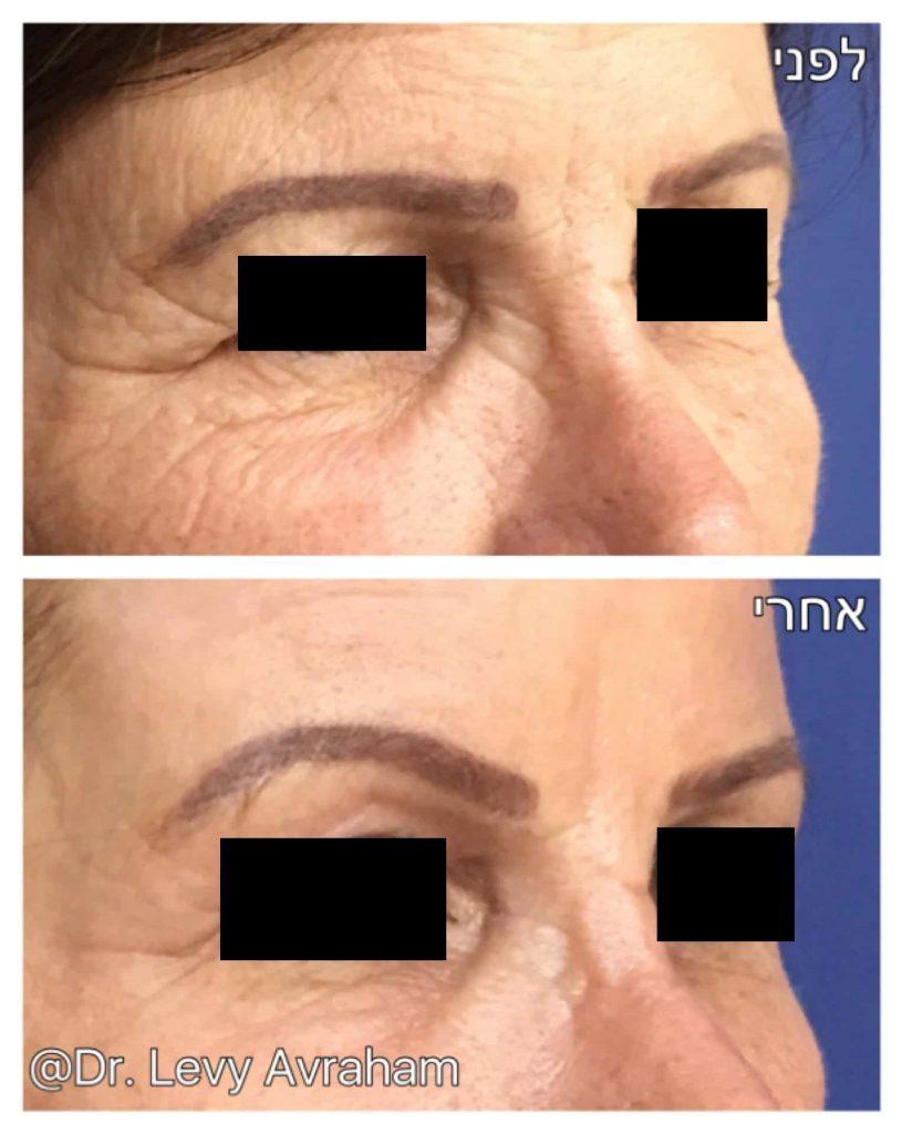 פילינג טיפול תמונה לפני ואחרי