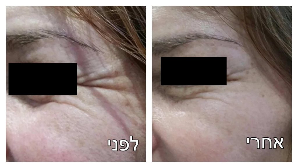 הזרקת בוטוקס סביב העיניים