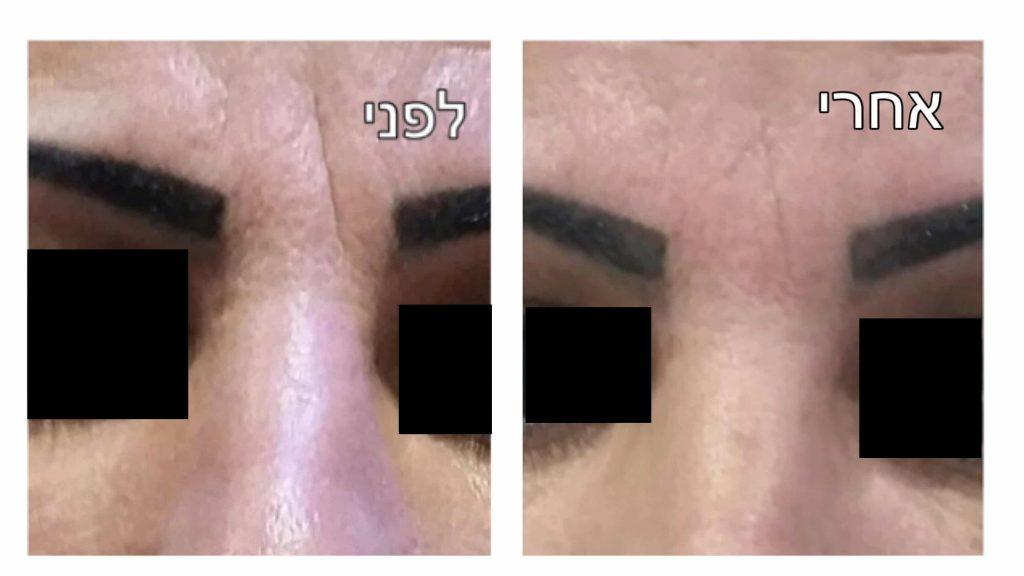 בוטוקס בעיניים תמונה לפני ואחרי