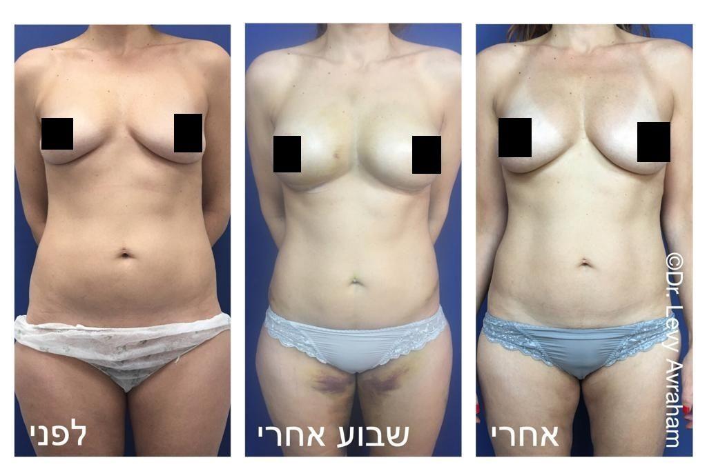 הזרקת שומן לחזה תמונות לפני ואחרי