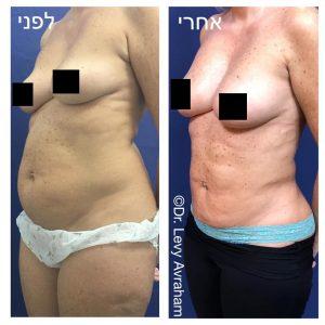 הגדלת חזה בהזרקת שומן