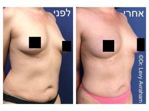 הגדלת שדיים בהזרקת שומן