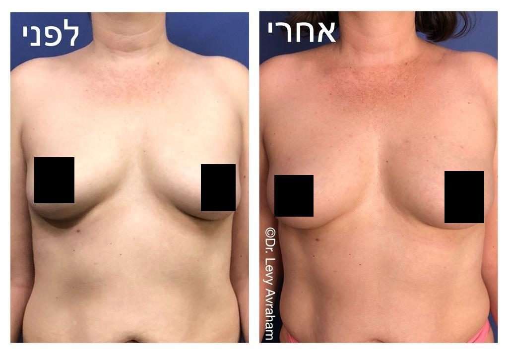 הגדלת חזה בהזרקת שומן עצמי