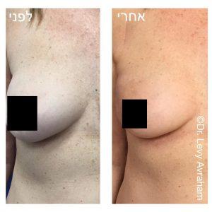הזרקת שומן עצמוני ותיקון דפורמציה