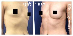 עיצוב חזה בהזרקת שומן