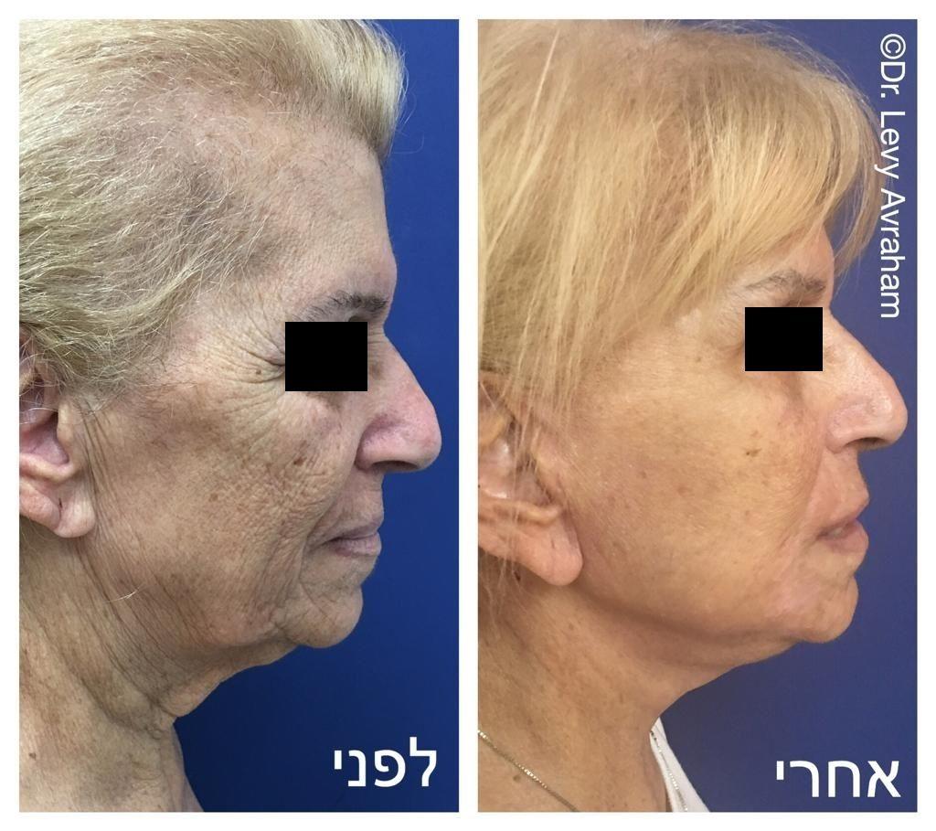 לפני ואחרי הרמת פנים לוי אברהם
