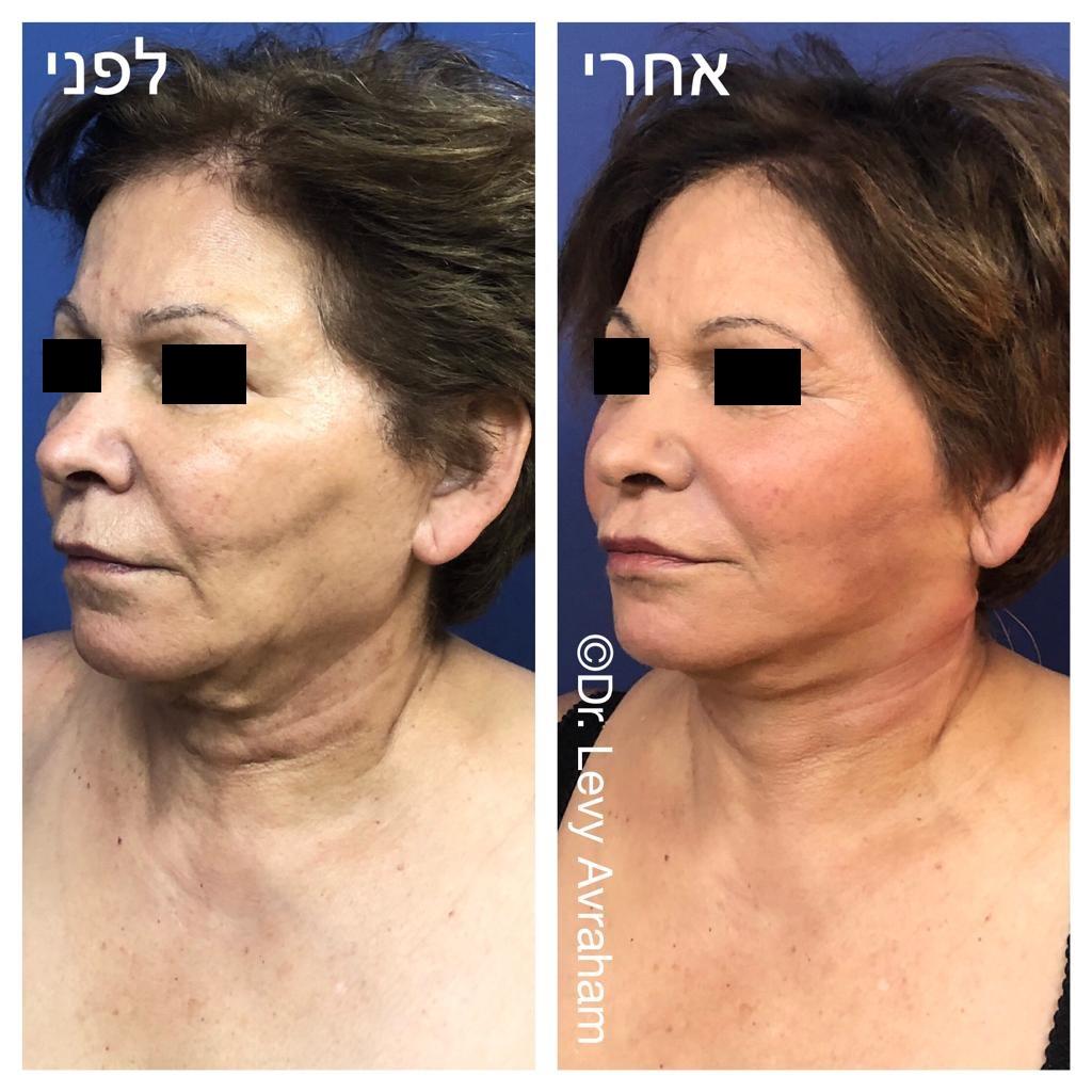 הרמת פנים לאישה לפני ואחרי
