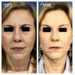 הרמות פנים על ידי מנתח פלסי