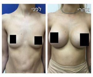 הגדלת חזה ניתוח