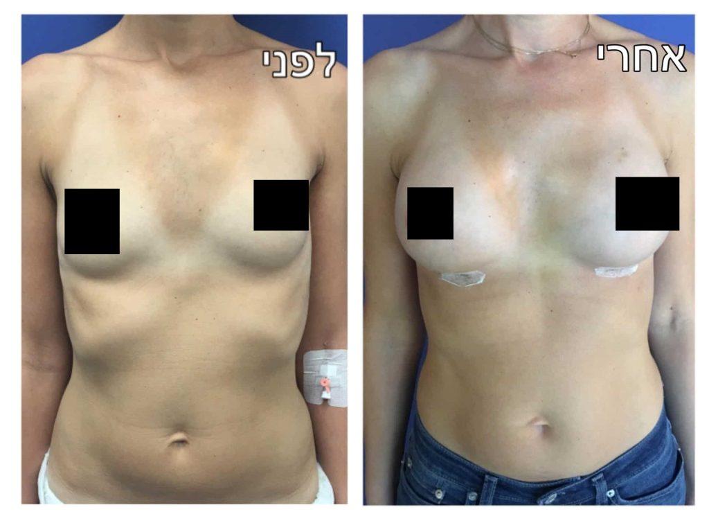 הגדלת חזה לפני ואחרי תמונה