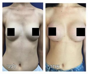 ניתוחי הגדלת חזה