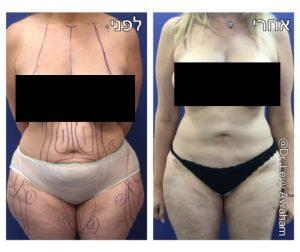 שאיבת שומן אישה לפני ואחרי