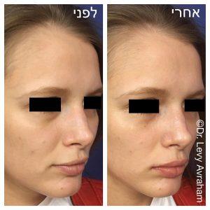 עיבוי שפתיים תמונה לפני ואחרי