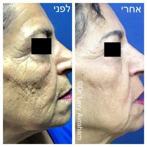 פילינג לעור הפנים