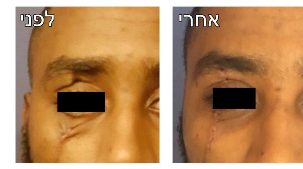 תיקון ניתוח פלסטי