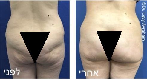 הפרדת הידבקיות בין השריר לעור והחדרת שתלים