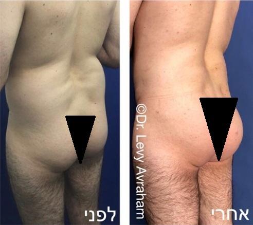 עיצוב גוף וישבן על ידי הזרקת שומן עצמוני