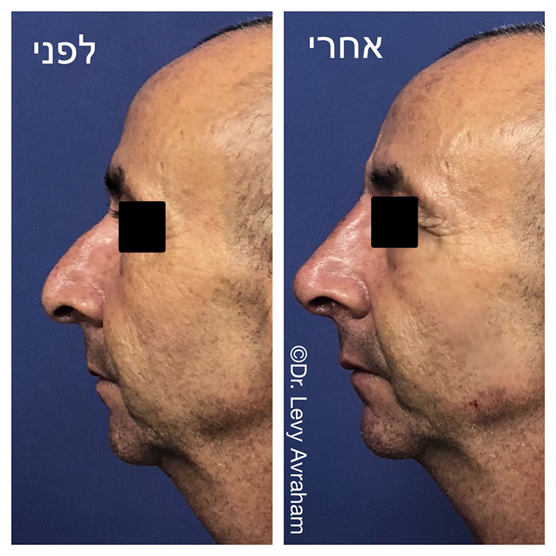 טיפול באלנסה לקידום הסנטר, עיגול המצח ופיסול האף
