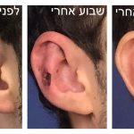 """ד""""ר לוי אברהם הצמדה של האוזן"""