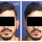 ניתוח לתיקון אוזניים בולטות