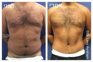 גניקומסטיה תמונה לפני ואחרי
