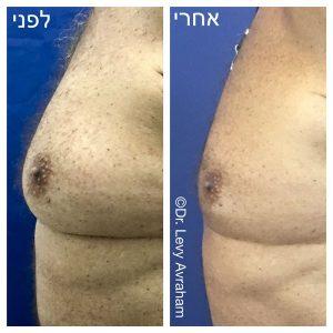 גניקומסטיה לפני ואחרי