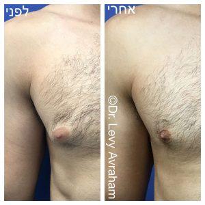 תמונה לפני ואחרי ניתוח הקטנת חזה לגברים