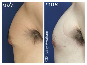 גניקומסטיה ניתוח