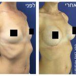 ניתוח חזה אישה