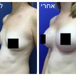 ניתוח הגדלת חזה נשים