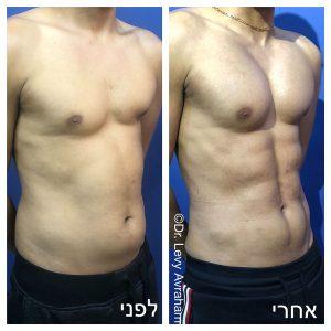 ניתוח פלסטי קוביות בבטן