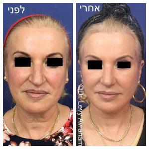 ניתוח עפעפיים תמונה לפני ואחרי